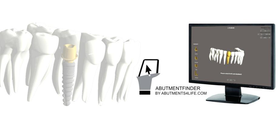 LTS-Abutmentfinder